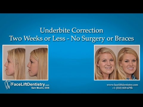 Underbite Correction -- Two Weeks or Less - No Surgery or Braces