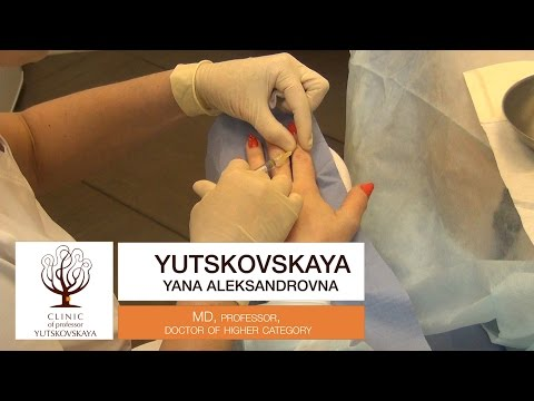 Коррекция кистей рук