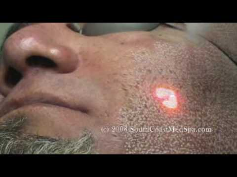 Laser Acne Scar Removal Treatment - Hispanic Patient