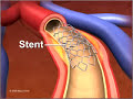 Percutaneous coronary Intervention stenting