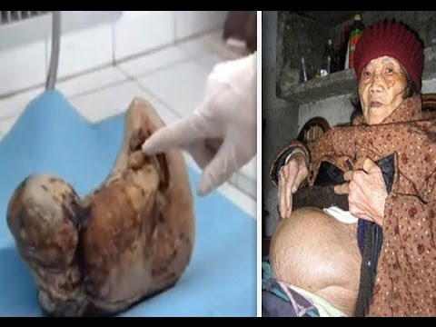 The 46 Year Pregnancy - Extraordinary People ( Shocking Documentary )  ( Zahra Aboutalib ) video