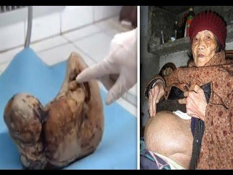 epidermodysplasia verruciformis pictures #11