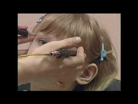 0 - Приглухуватість у дитини: причини, симптоми, лікування приглухуватості, нейросенсорна приглухуватість