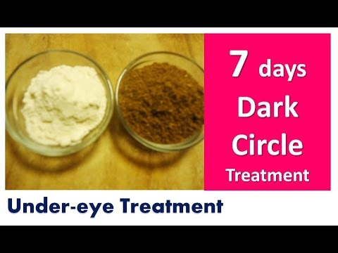 Remove Dark Circles in 7 days | Acne | Under eyes | Dark Circle Treatment