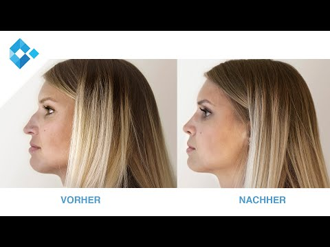 Die Kunst der Nasenkorrektur | OA Dr. Wolfgang Rohrbacher