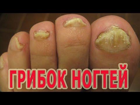 Народное средство против грибка ногтей на ногах содой