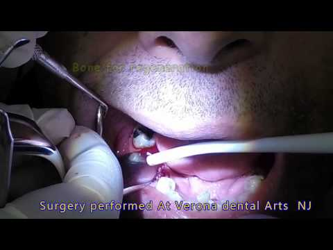 bone graft for implant placement dental oral surgery