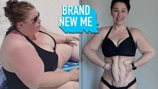 I Lost 230lbs But Can Surgery Fix My Excess Skin? | BRAND NEW ME