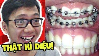 NIỀNG RĂNG THẬT LÀ KÌ DIỆU!! (Sơn Đù Vlog Reaction)