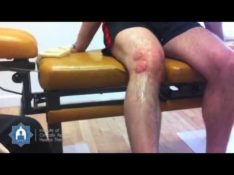 Wet Cupping / Hijama treatment after rugby knee injury