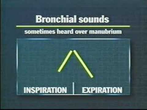 breath sounds 399961 shouts assessing lung sounds 17394 shouts