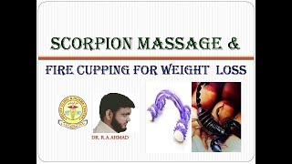 FIRE CUPPING FOR WEIGHT LOSS :SCORPION MASSAGE FOR BELLY FAT /CHEST FAT/HIP FAT/RESIZE BODY