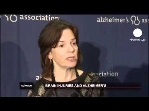 euronews science - Alzheimer's studied in veteran US soldiers