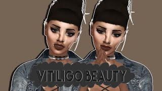 The Sims 4 | Create A Sim | Vitiligo Beauty+CC List  | Collab w/Z.E.T Simmer | Triickestsims