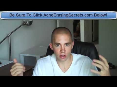 Acne Skin Treatment   Best Way To Get Rid Of Acne Fastest