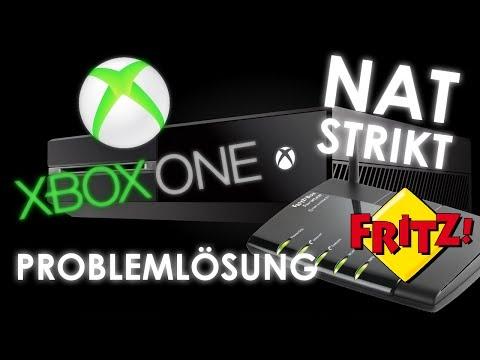 Xbox One - NAT Probleme beheben - FBEditor Lösung - Fritz Box