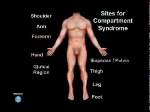 Compartment Syndrome Animation - Everything You Need to Know - Dr. Nabil Ebraheim