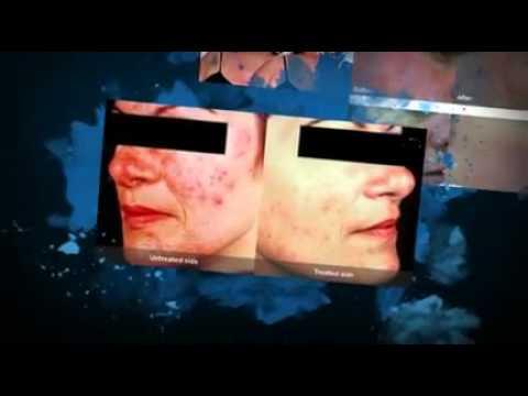 Treatment Rosacea - Acne Rosacea