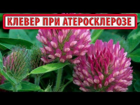 КЛЕВЕР КРАСНЫЙ ЛУГОВОЙ    Полезные свойства   Лечение атеросклероза травами (клевером)   РЕЦЕПТ