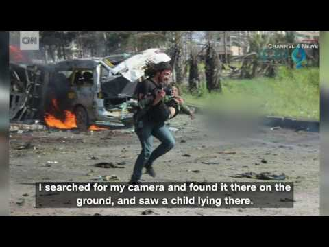 Syria Photographer Puts Down Camera To Pick Up Injured Boy