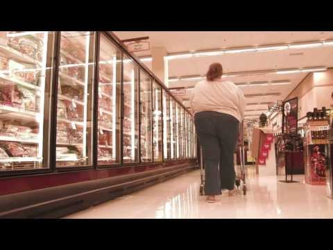 Understanding Obesity - Morbid Obesity and Co-morbidities