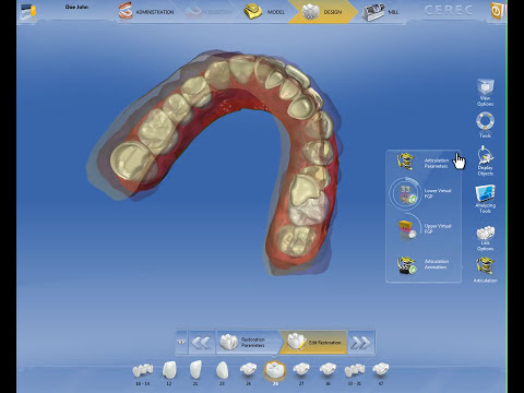 CEREC Software 4.2 - Virtual Articulation