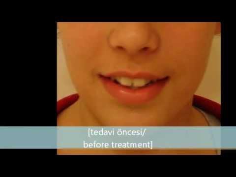 Ön diş çapraşıklıklarının ortodontik tedavisi