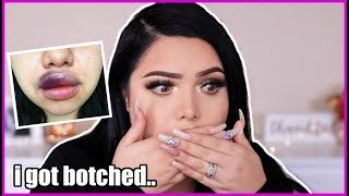 Story Time GRWM | My horrific lip injections experience