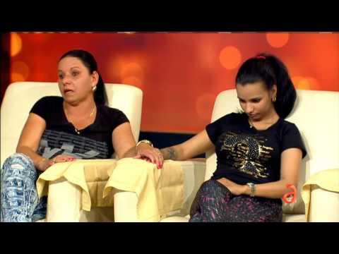 Testimonio de joven cubana víctima de negligencia en cirugía estética