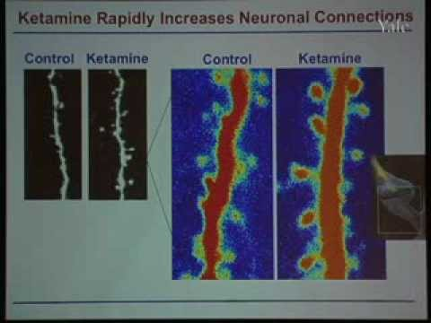 New Mechanisms Elicited with Ketamine in Treatment-Resistant Depression