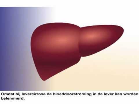 levercirrose symptomen jeuk