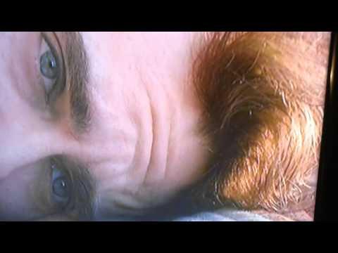 Joaquin Phoenix's Forehead (Original)