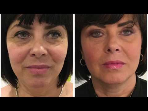 HIFU Non-Surgical Face Lift Treatment | Client Testimonial | Hazel