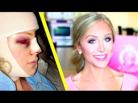 My Facial Plastic Surgery Story   Gigi