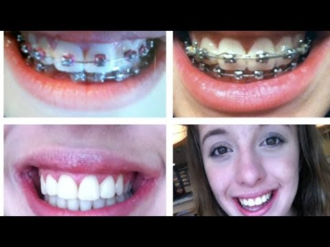 All About Braces: Braces 101! {Getting them off/Retainers} | LeagallyBrunette5