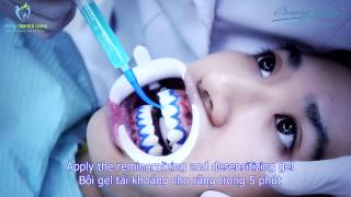 Tẩy trắng răng - Teeth Whitening with Beaming White (USA)