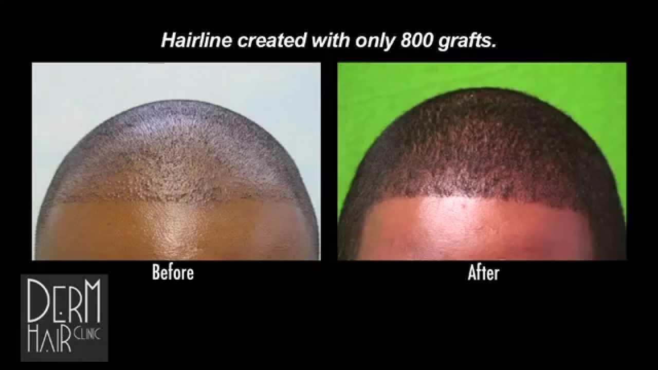 Natural Hairline Black Men