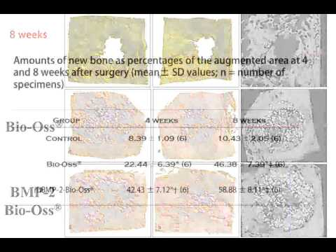 BMP 1211 05 Effect of Bone graft With BMP 2 vs, without rhBMP 2