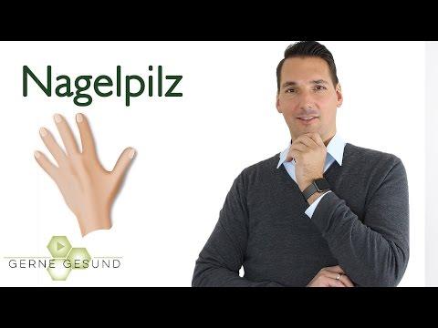 Volkskrankheit Nagelpilz: Was hilft und wann muss man zum Arzt? - Gerne Gesund
