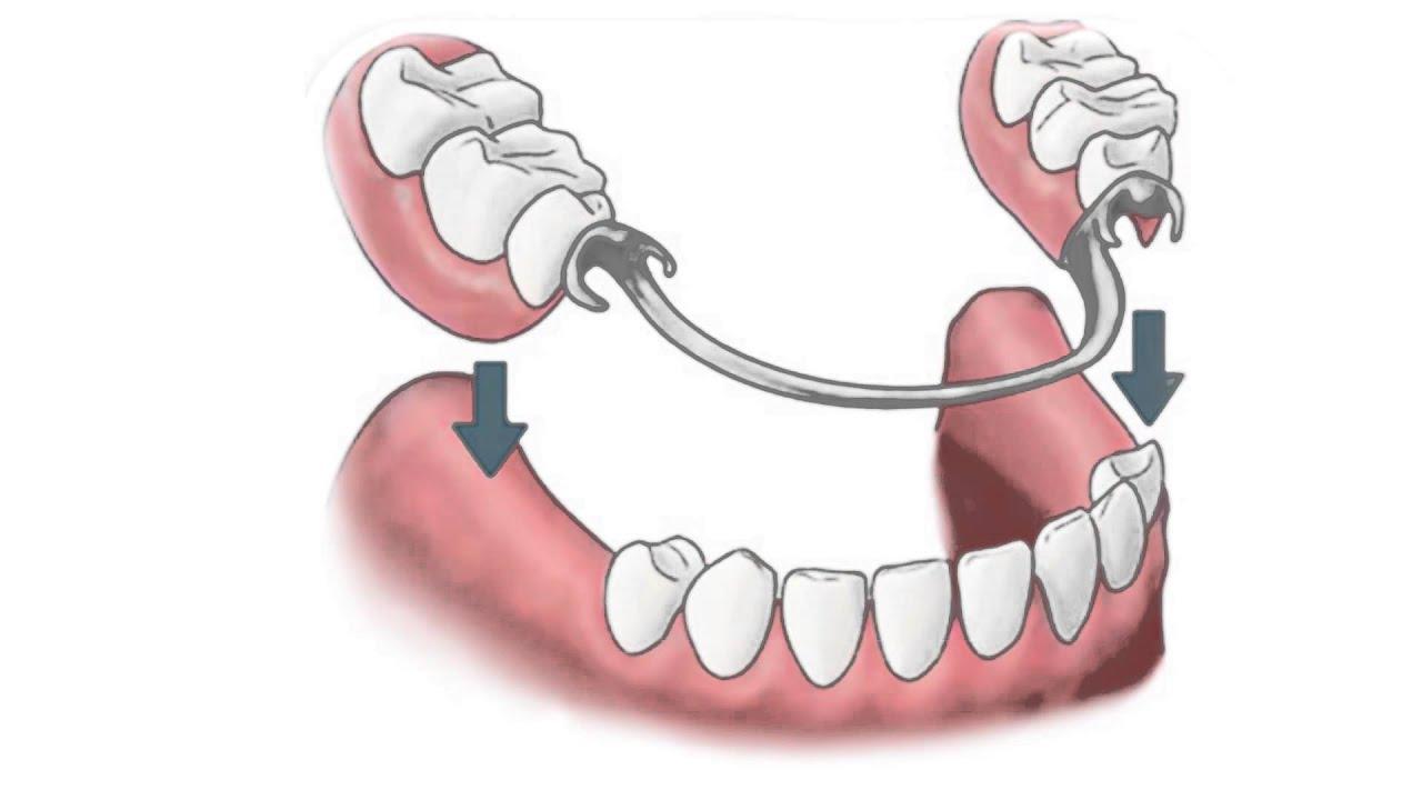 Fotos de proteses fixas dentarias 14