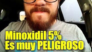 Minoxidil me DAÑO la cara. ((--Como crecer la barba--))