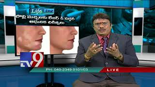 Vitiligo || Latest treatment || Life Line