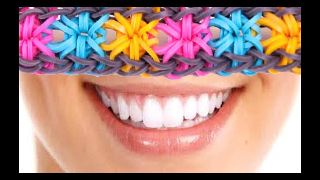 Tuto rainbow loom francais comment faire des bracelets avec des lastiques fleurs youtube - Comment faire une fleur en elastique ...