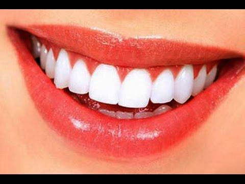 Evde kolay diş taşı temizliği