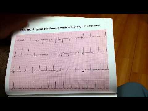 EKG11 51 YEAR OLD FEMALE WITH A HISTORY OF ASTHMA www.drbenzur.com