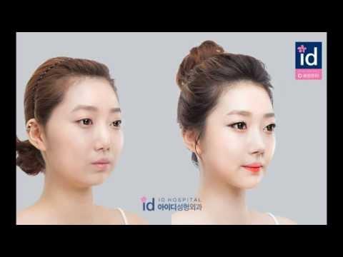 韓国輪郭!整形ビフォーアフター動画。Vライン手術(エラ削り、顎修正)、頬骨縮小、鼻再手術
