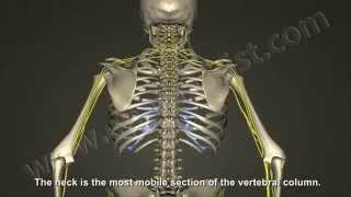 What is Cervical Radiculopathy, Disc Bulge, Herniation