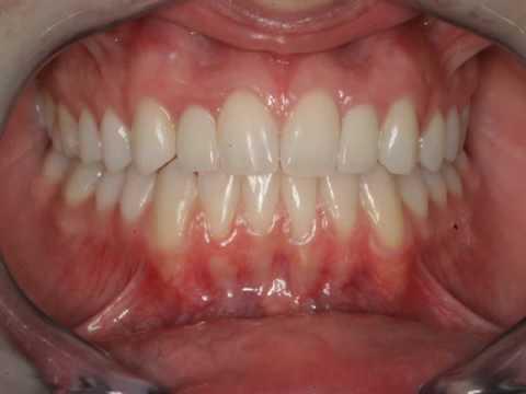 Gum Graft Cost of Gum Grafting