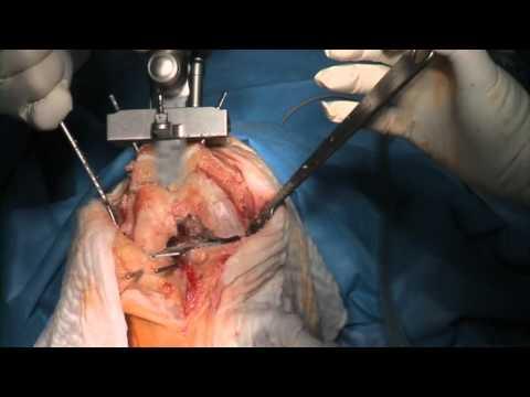Navigierte Knieendoprothesen-Operation