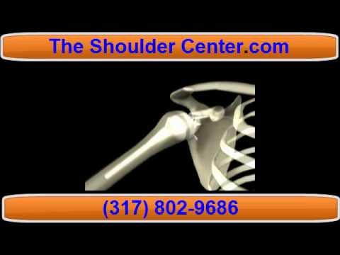 Anal Shoulder shaved rotator cuff füsse lecken